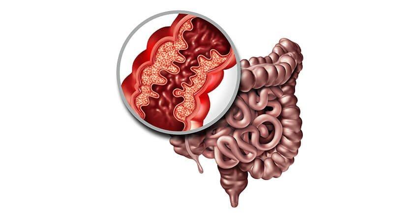 Crohn's disease or inflammatory bowel disease