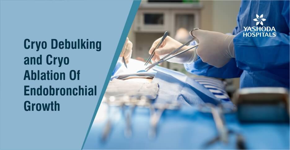 Cryo Debulking And CryoAblation Of Endobronchial Growth