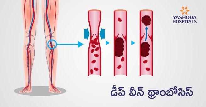 Deep Vein Thrombosis in Telugu