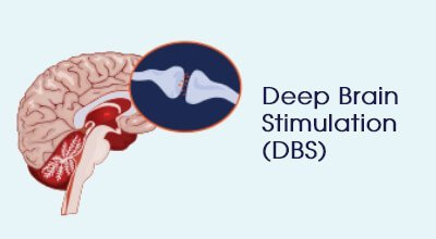 Deep brain stimulation (DBS) Infographics