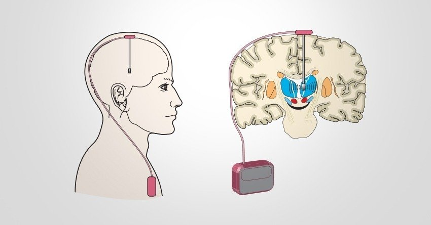 deep brain stimulation and parkinsons Deep brain stimulation (dbs) is a neurosurgical procedure involving the implantation of a medical device called a neurostimulator (sometimes referred to as a 'brain pacemaker') video: deep brain stimulation to treat parkinson's disease video.