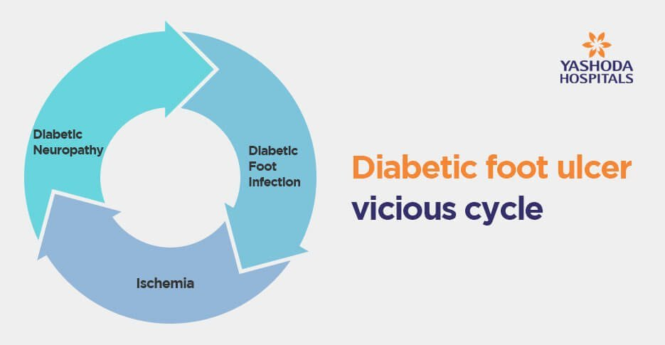 Diabetic foot ulcer vicious cycle