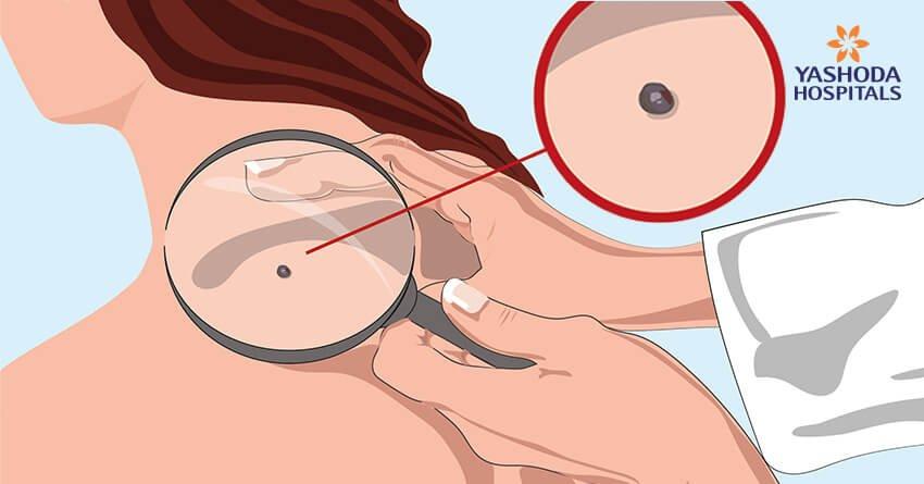 Diagnosing-skin-diseases
