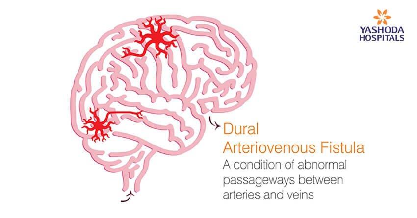 A condition of abnormal passageways between arteries and veins Dural arteriovenous fistulas (DAVF)