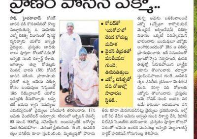 ECMO to revive badly Covid case sakshi