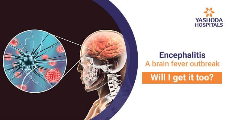 Encephalitis-brain fever outbreak