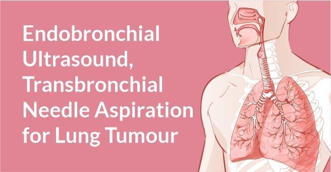 Endobronchial Ultrasound +Transbronchial Needle Aspiration for Lung Tumour