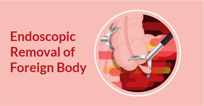 Endoscopic Removal of Foreign Body