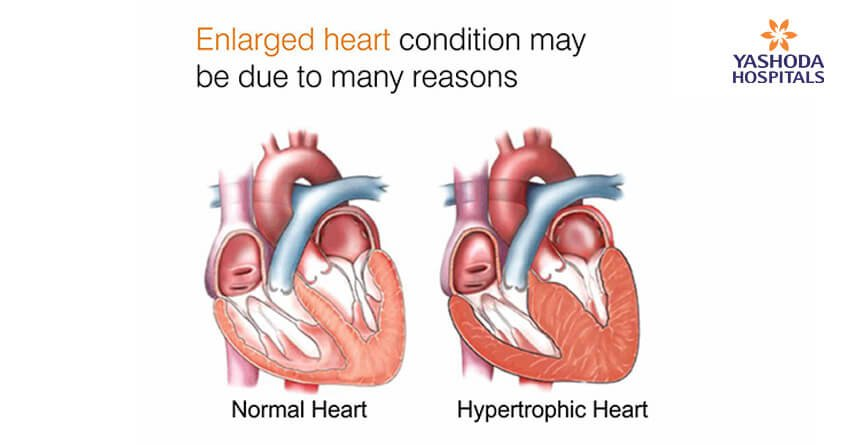Enlarged Heart: What are its causes