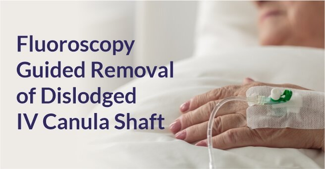 Fluoroscopy Guided Removal of Dislodged IV Canula Shaft