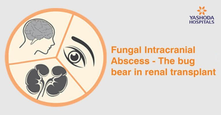 Fungal-Intracranial-Abscess
