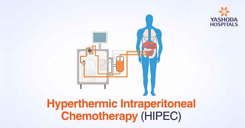 Hyperthermic Intraperitoneal Chemotherapy Hipec For