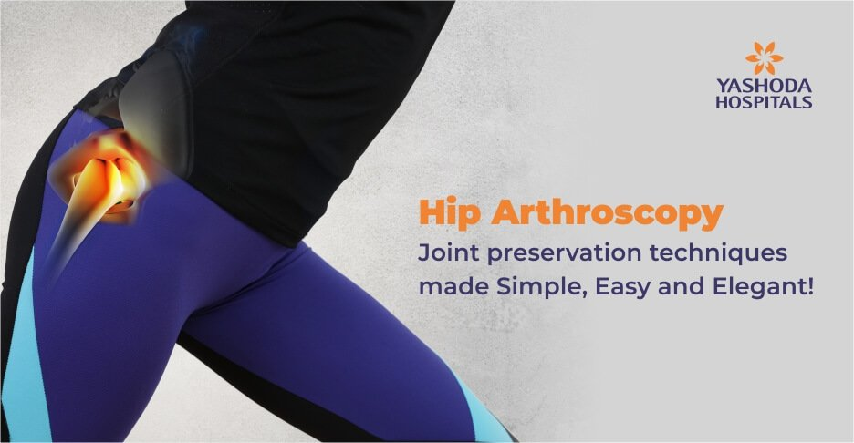 Hip Arthroscopy: Joint preservation techniques made Simple, Easy and Elegant