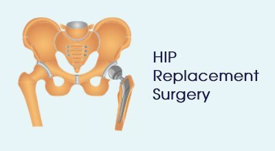 Hip replacement surgery Infographics