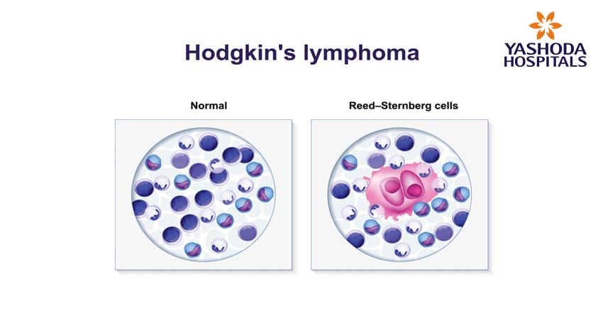 Hodgkin's lymphoma
