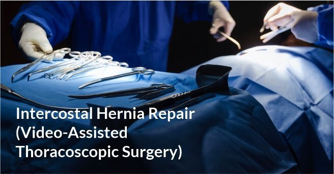 Intercostal Hernia Repair (Video-Assisted Thoracoscopic Surgery)
