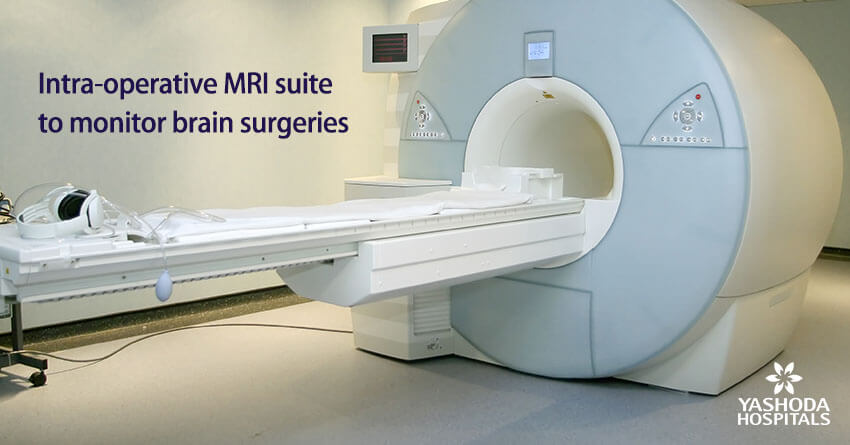 Intra-operative MRI suite to monitor brain surgeries