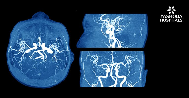 Intraoperative ICG Video Angiography in the Management of Intracranial Aneurysm Surgery