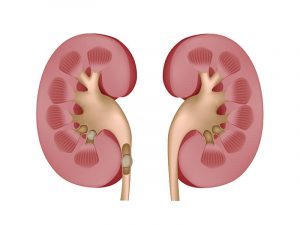 Kidney Stones: Causes, Symptoms, Prevention, Diagnosis and