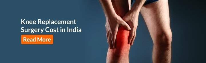 Knee replacement surgery costs