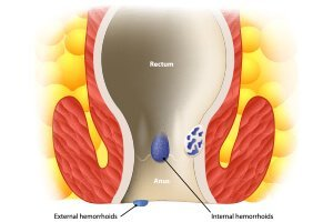Know About hemorrhoids or Piles