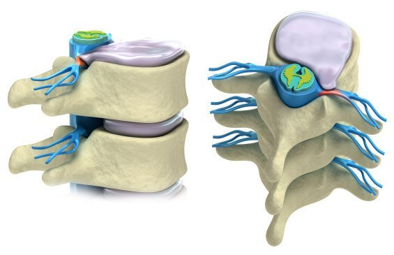Kyphoplasty Cost in India   Kyphoplasty Cost in Hyderabad