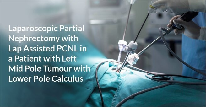 Laparoscopic Partial Nephrectomy with Lap Assisted PCNL