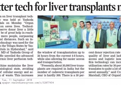 Liver Tranplants-indianexpress