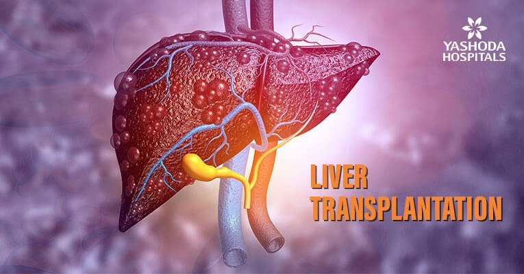 Liver Transplantation Current Status and Challenges