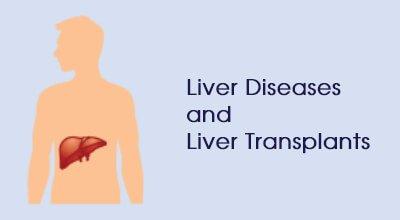 Liver dieases liver transplants Infographics