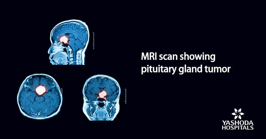 MRI scan showing pituitary gland tumor