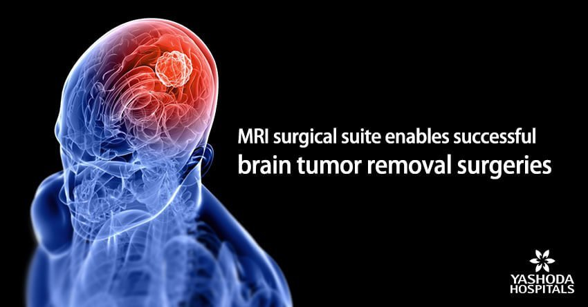 MRI surgical suite enables successful brain tumor removal surgeries