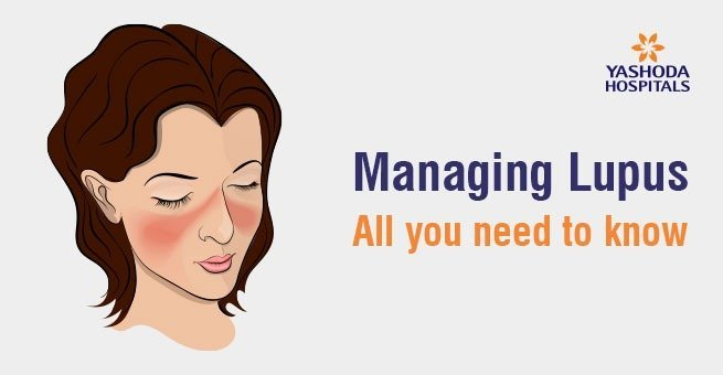 Managing Lupus:All you need to know