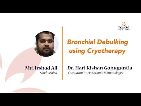 Patient Testimonial for bronchoscopic debulking by Md. Irshad Ali from Saudi Arabia
