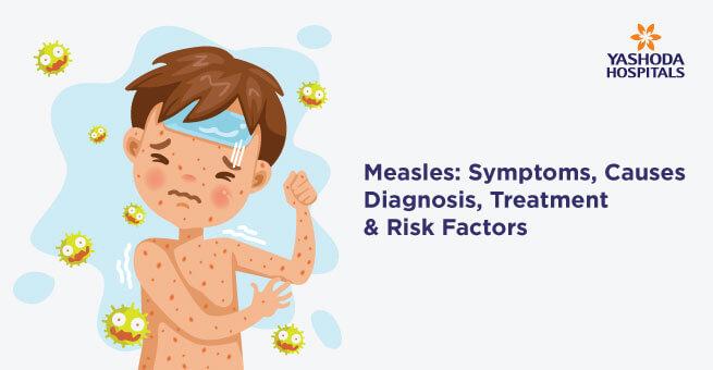 Measles: Symptoms, Causes, Diagnosis, Treatment & Risk Factors
