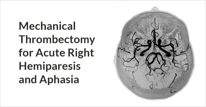 Mechanical Thrombectomy for Acute Right Hemiparesis and Aphasia