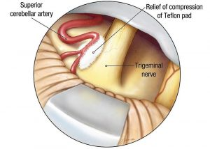 Microvascular decompression for Trigeminal Neuralgia
