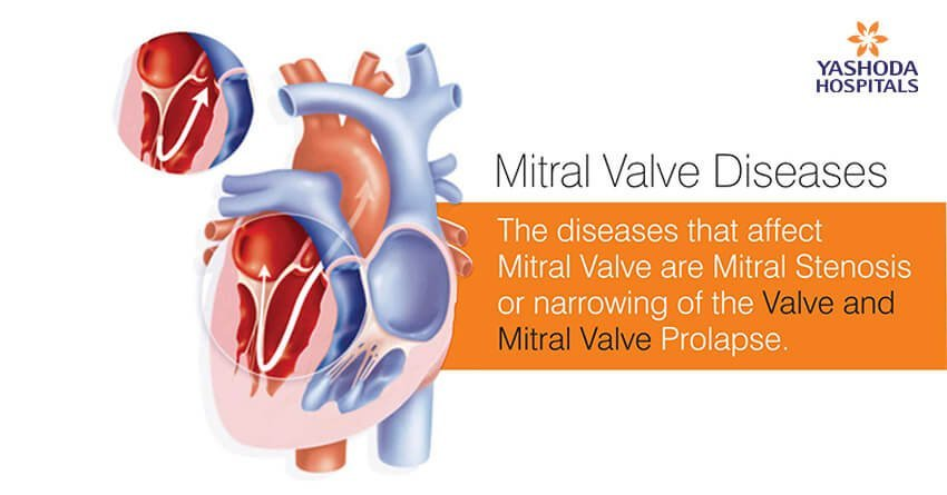 The diseases that affect mitral valve are mitral stenosis or narrowing of the valve and mitral valve prolapse