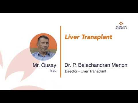 Mr Qusay Liver Transplant