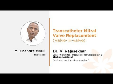 Mr. Chandra Mouli Transcatheter Mitral Valve Replacement