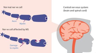 How MS interrupts nerve signals