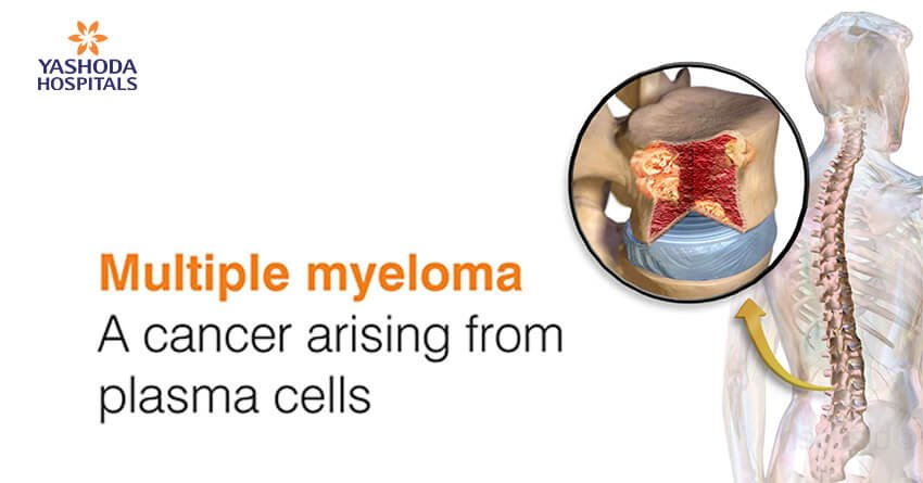 Multiple Myeloma. A cancer arising from plasma cells