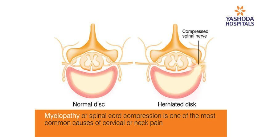 Myelopathy or spinal cord compression is one of the most common causes of cervical or neck pain