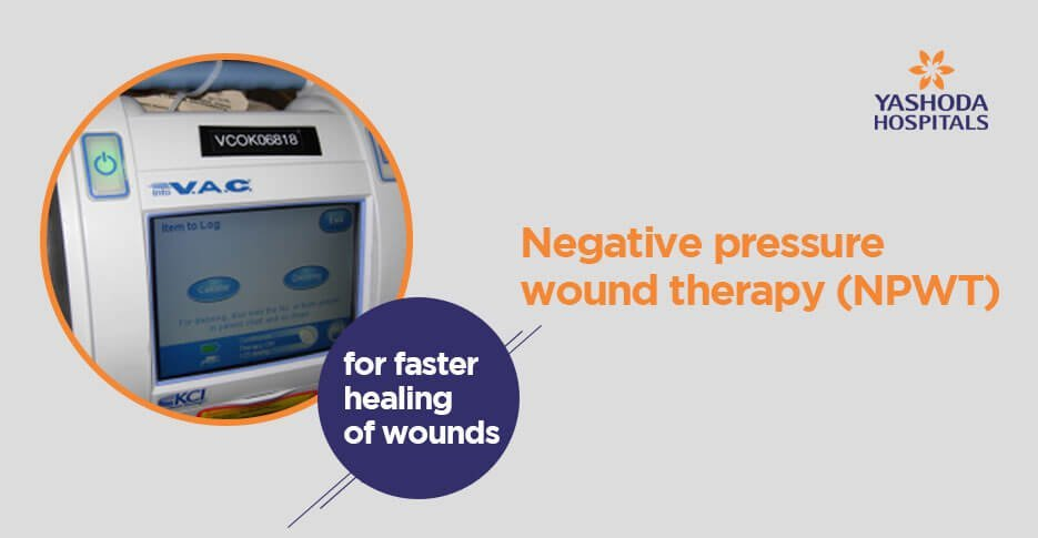 Negative pressure wound therapy (NPWT)