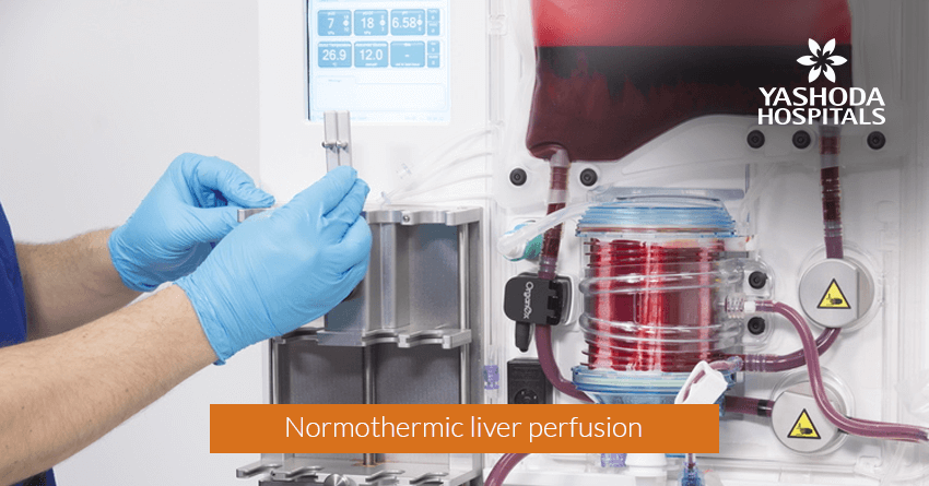 Normothermic liver perfusion