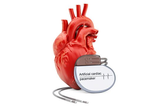 Pacemaker Surgery Cost in India   Pacemaker Surgery cost in Hyderabad