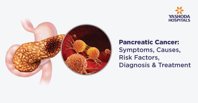 Pancreatic Cancer Symptoms Causes Risk Factors Diagnosis Treatment