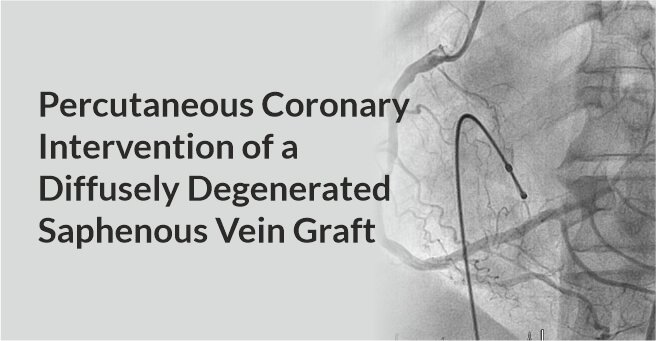 Percutaneous Coronary Intervention of A Diffusely Degenerated Saphenous Vein Graft