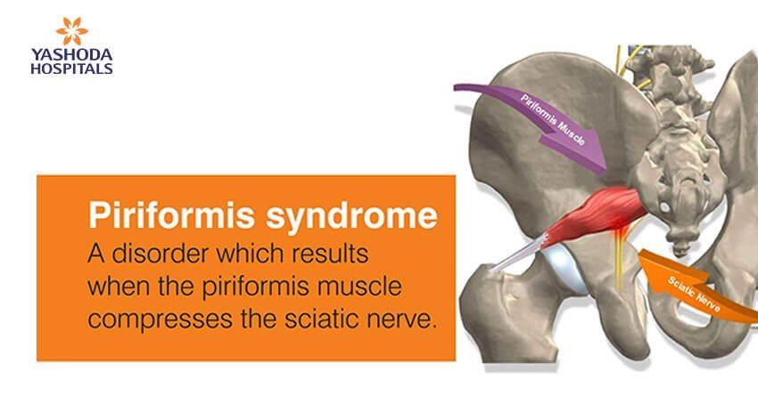 Managing piriformis syndrome requires a comprehensive approach