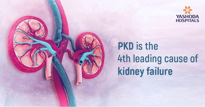 Polycystic Kidney Disease-kidney failure